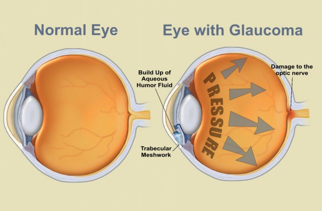 glaucoma eyes